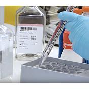 Un estudio liderado por la UBU analiza la presencia del virus de la hepatitis E en el ganado porcino español